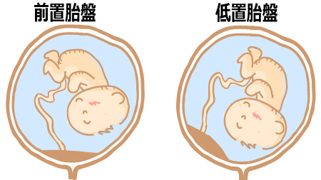 前置胎盤・低置胎盤