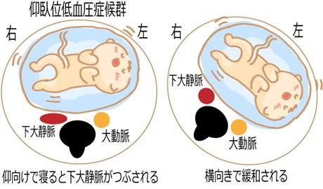 お腹の張り 寝方 仰臥位低血圧症候群