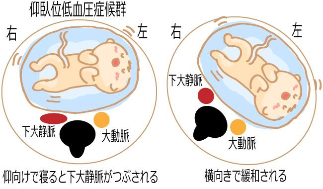仰臥位低血圧症候群のイメージ図