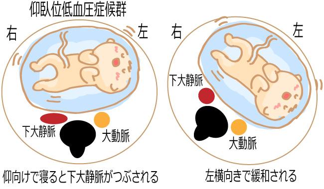 仰臥位低血圧症候群の左横向き
