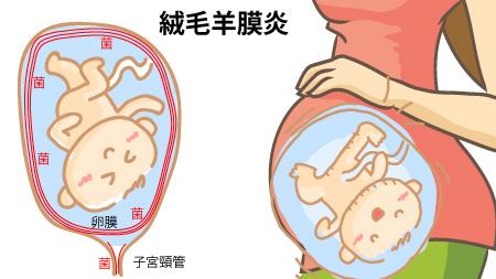 絨毛羊膜炎 おりものがくさい?早産の可能性