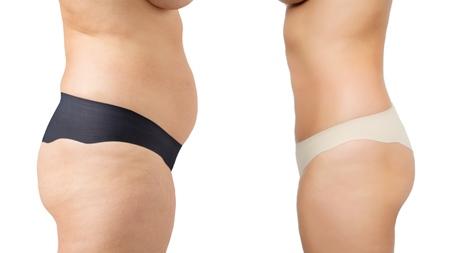 運動は産後の体型戻しにも効果的