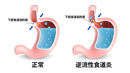 逆流性食道炎の仕組み
