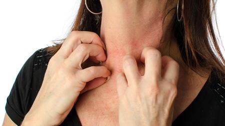 過度の摂取によるアレルギーの誘発