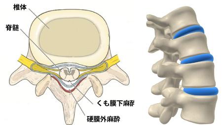 硬膜外麻酔による分娩