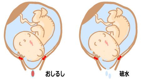 おしるし→破水→陣痛→出産のケース