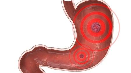 胃潰瘍 胃の炎症