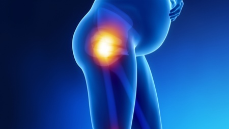 臨月の足の付け根の痛みのいろいろ