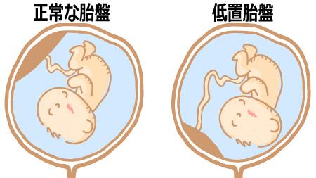 通常の胎盤位置 低置胎盤