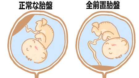 前置胎盤の方はおしるし、出血に注意