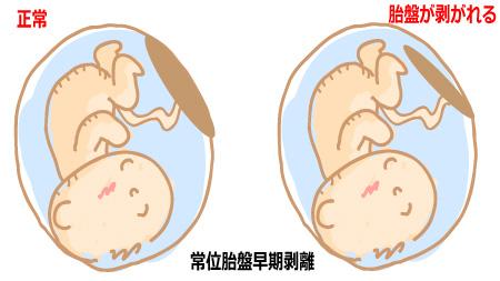 常位胎盤早期剥離について