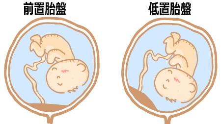 低置胎盤と前置胎盤について