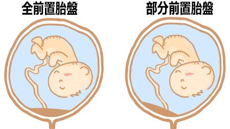 前置胎盤の可能性