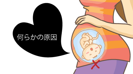 後期流産について