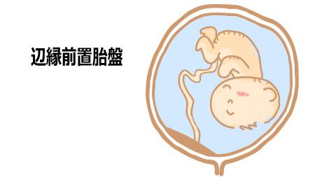 辺縁前置胎盤