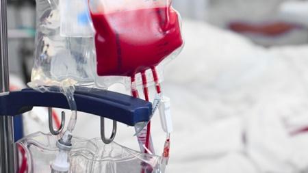 輸血用の自分の血液の確保