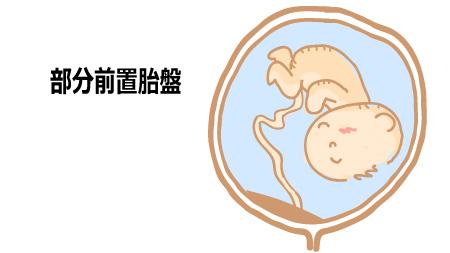 部分前置胎盤