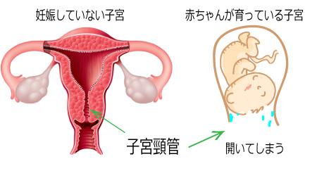 切迫早産の原因-子宮頸管