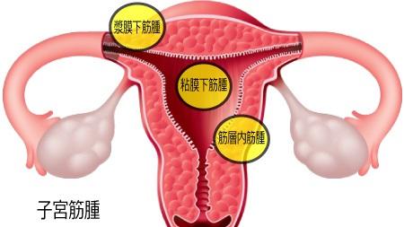 子宮筋腫とは